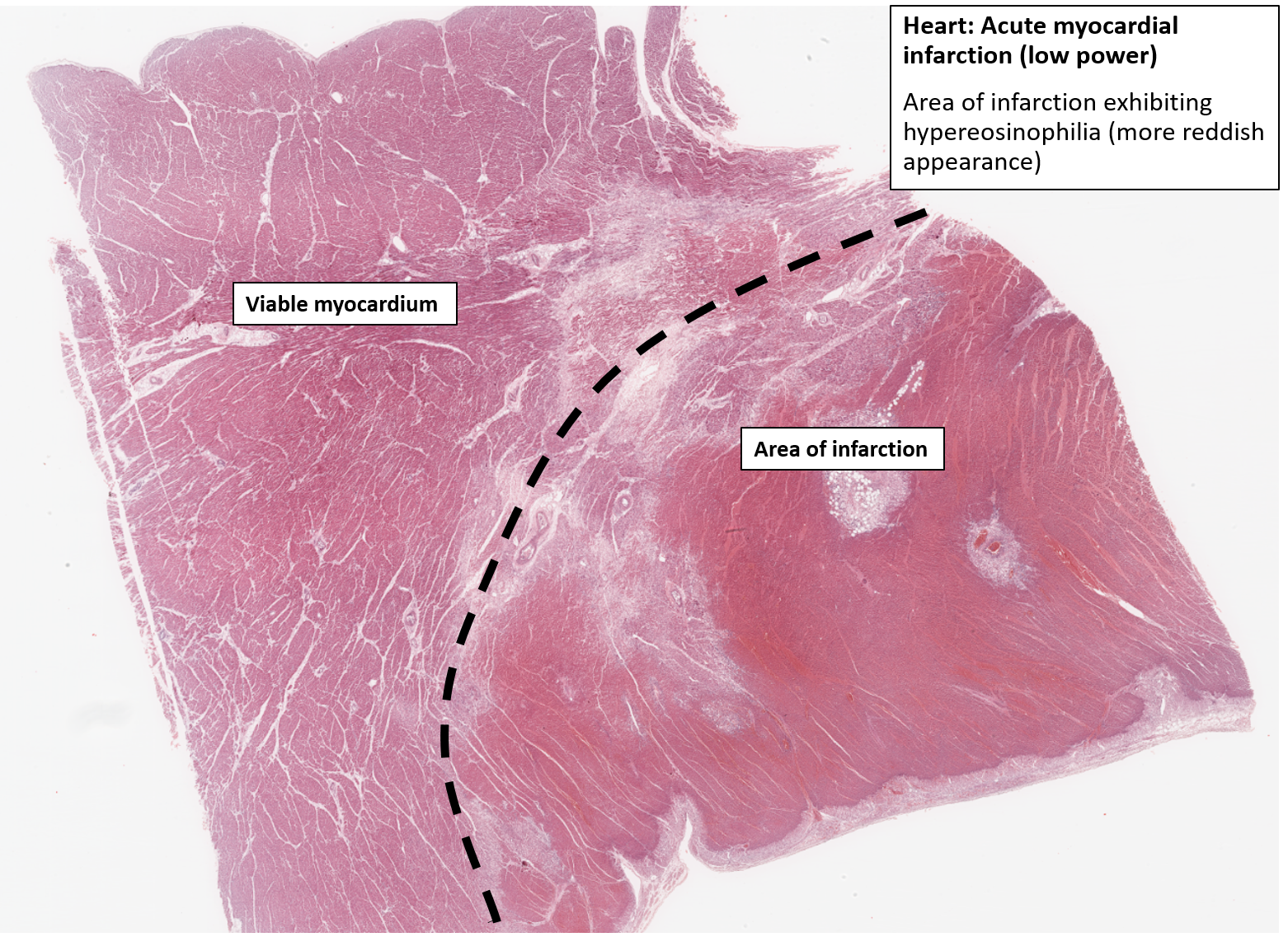 dating myocardial infarction histology Ischemic heart disease is caused by an imbalance between the myocardial blood flow and the metabolic demand of non-st-segment elevation myocardial infarction.