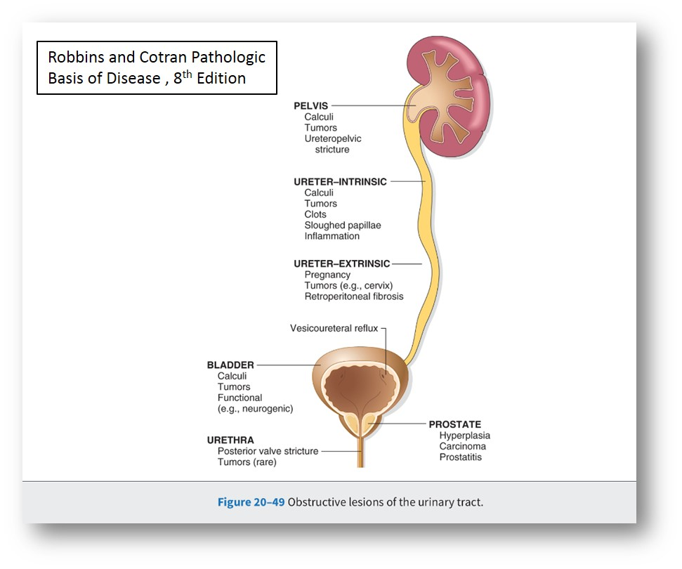 Iii Lower Urinary Tract And Male Genital System Nus Pathology