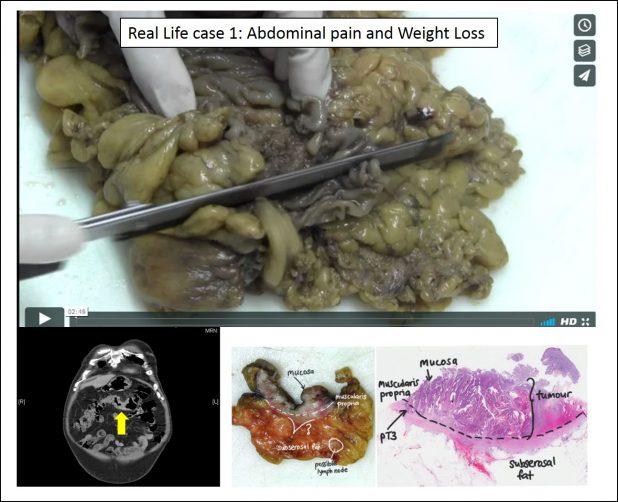 colon real life case